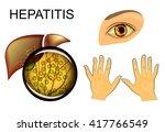 illustration of the liver ...   Shutterstock .eps vector #417766549