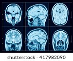 closeup of a ct scan with brain | Shutterstock . vector #417982090