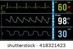 patient monitor displays vital...   Shutterstock .eps vector #418321423