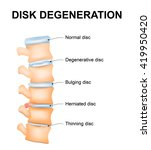 Disc Degeneration It's The...