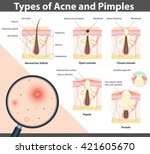 types of acne and pimples ... | Shutterstock .eps vector #421605670