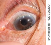 Small photo of close up of the post operative ECCE during eye examination.