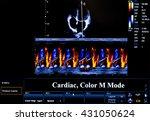 modern echocardiography ...   Shutterstock . vector #431050624
