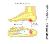 plantar fasciitis.  used ... | Shutterstock .eps vector #432302638