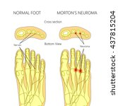 morton's neuroma with cross... | Shutterstock .eps vector #437815204