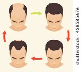 male hair loss stages set. man... | Shutterstock .eps vector #438585676