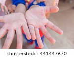 hand foot and mouth disease in... | Shutterstock . vector #441447670
