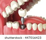 Tooth Human Implant. Dental...