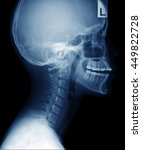 X Ray Asian Woman Skull And...