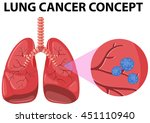 diagram of lung cancer concept... | Shutterstock .eps vector #451110940