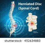 diagram showing herniated disc... | Shutterstock .eps vector #452634883