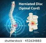 diagram showing herniated disc... | Shutterstock .eps vector #452634883