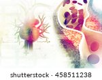 cholesterol plaque in artery | Shutterstock . vector #458511238