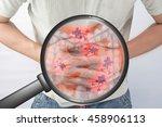 concept zoom visceral cancer. | Shutterstock . vector #458906113