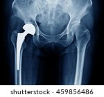 x ray scan image of hip joints... | Shutterstock . vector #459856486