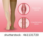 medical compression hosiery for ... | Shutterstock .eps vector #461131720