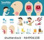 tonsillitis infographic element.... | Shutterstock .eps vector #464906108
