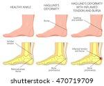 vector illustration of an ankle ... | Shutterstock .eps vector #470719709