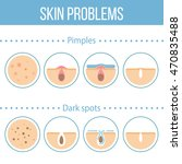 skin problems icons set. | Shutterstock . vector #470835488