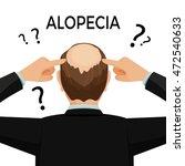 alopecia concept. man is... | Shutterstock .eps vector #472540633