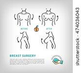 augmentation breast surgery...   Shutterstock .eps vector #474036043
