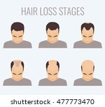 male hair loss stages set. top... | Shutterstock . vector #477773470