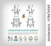 liposuction and tummy tuck ... | Shutterstock .eps vector #478676569