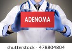 Small photo of Doctor's hands in blue gloves shows the word adenoma. Medical concept.