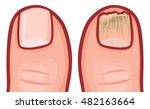 fungal infection of the nails... | Shutterstock .eps vector #482163664
