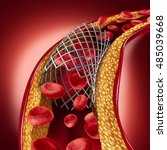 stent implant concept as a... | Shutterstock . vector #485039668