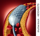 angioplasty and stent concept... | Shutterstock . vector #485040370