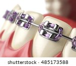 teeth with braces or brackets...   Shutterstock . vector #485173588