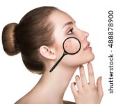Small photo of Young woman with acne skin and magnifying glass