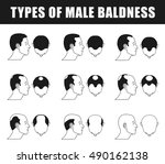 male baldness closeup  types of ... | Shutterstock .eps vector #490162138