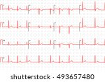 typical human electrocardiogram ... | Shutterstock .eps vector #493657480