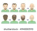 balding head middle men | Shutterstock .eps vector #494000593