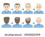 balding head young men | Shutterstock .eps vector #494000599