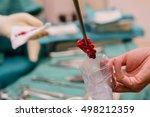 surgical biopsy specimens