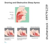 snoring is the vibration of... | Shutterstock .eps vector #499791259