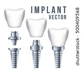 dental tooth implant and parts... | Shutterstock .eps vector #500409568
