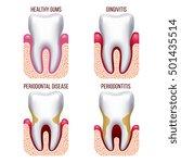 human gum disease  gums... | Shutterstock .eps vector #501435514