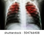 Small photo of Pulmonary Tuberculosis ( TB ) : Chest x-ray show alveolar infiltration at both lung due to mycobacterium tuberculosis infection