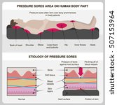man with pressure sores.... | Shutterstock .eps vector #507153964