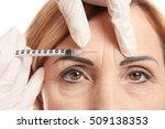 hyaluronic acid injection for... | Shutterstock . vector #509138353