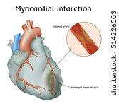 myocardial infarction. heart... | Shutterstock .eps vector #514226503