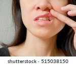 Small photo of Canker sore on woman upper lip