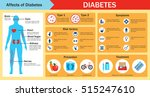 affects of diabetes... | Shutterstock .eps vector #515247610