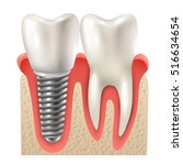 dental implants and tooth set...