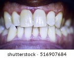 Small photo of Dentists dental tooth photograph showing tooth non aligned front teeth and plaque.