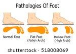 illustration of foot... | Shutterstock .eps vector #518008069